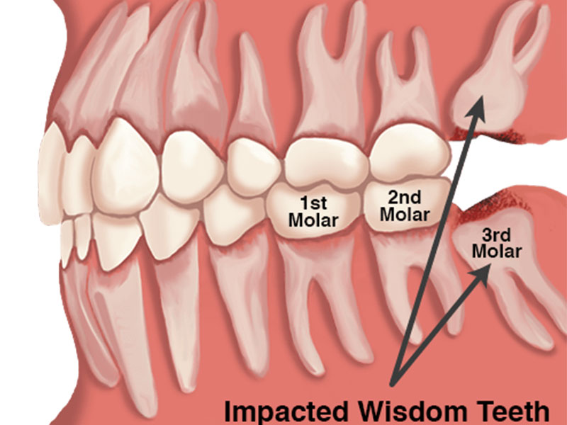 Wisdom Teeth What They Are And Why To Remove Them Meyer Clinic